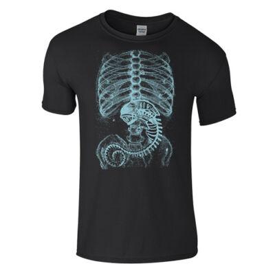 Alien X-Ray póló (fekete)